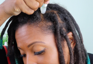 Noggin Oil to Soothe Itchy Scalp With Locs