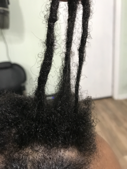 breakage at roots of locs from scratching with fingernails